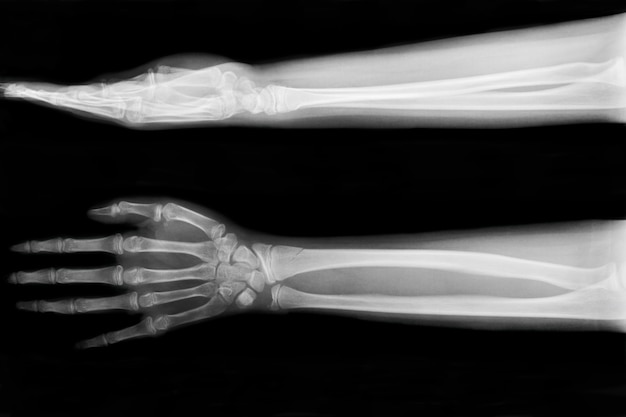 X선 골절 척골(팔뚝 뼈)