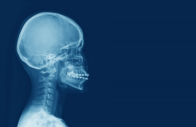 X-ray of human cervical spine and  head skull. sella turcica looks normal. medical image concept.