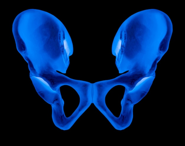 X-ray of human hip bone anterior view
