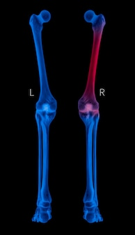 X-ray human leg bone posterior view with red highlights in femur bone pain areas, blue tone color