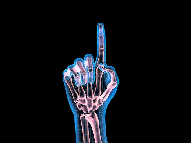 X-ray image of human hand with finger point