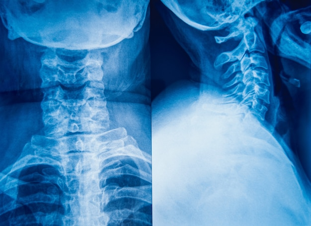 X-ray image of human neck for a medical diagnosis.