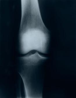 X-ray image of knee