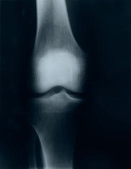 X-ray image of knee
