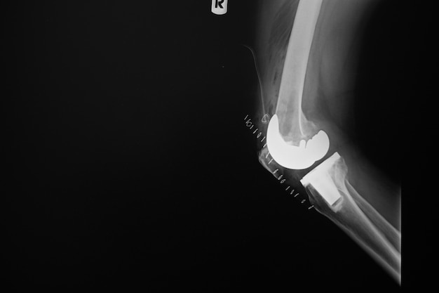 X-ray image of lanteroposterior(right) knee joint with total knee replacement.