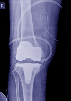 X-ray image post operation total knee replacement knee right.