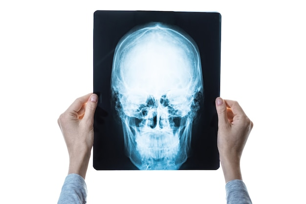 X-ray image of skull in hands, decryption concept