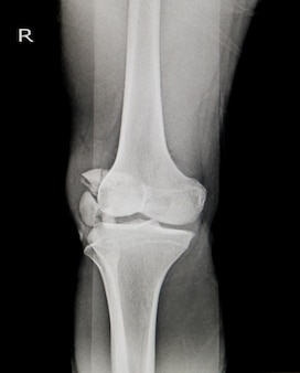 X-ray knee ap-lateral showing fracture patella or knee cap.