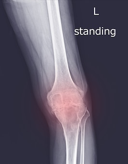 X-ray knee joint (standing view) finding degeneratine change of left knee on red mark.