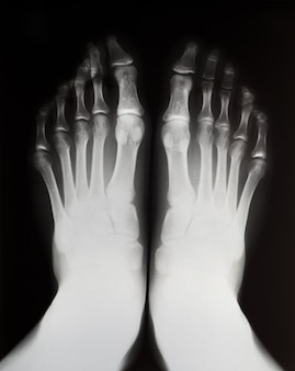 X-ray of the left and right feet.