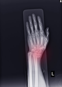 X-ray left wrist joint fracture with displacement distal end left radius.