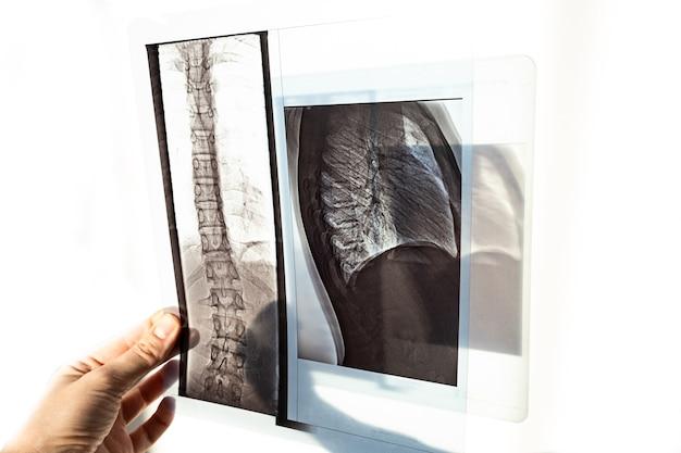 脊柱側弯症および脊椎の湾曲の場合の脊椎の裏側、肺および胸部の骨のx線写真。