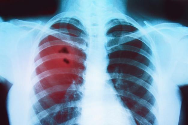 아픈 사람의 폐 엑스레이
