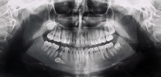 問題のある歯のある口のx線写真