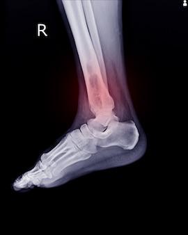 오른쪽 원위 경골의 골수 내 골 용해성 병변을 발견하는 x- 선 rt. 발목