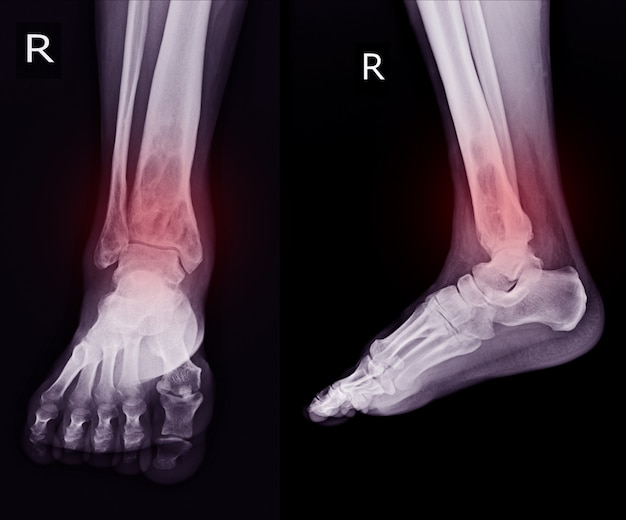 X-ray rt.ankle finding intramedullary osterolytic lesion of right distal tibia