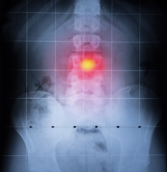 X ray, spine and pelvis of human body. back pain highlighted in red