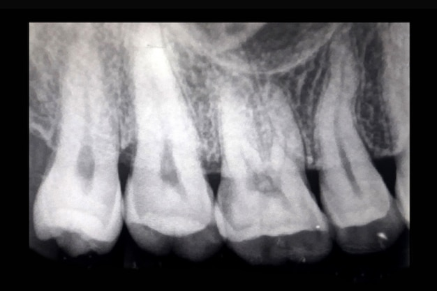 X-ray of teeth, closeup of teeth x-ray showing problem with infected gum and failed root.