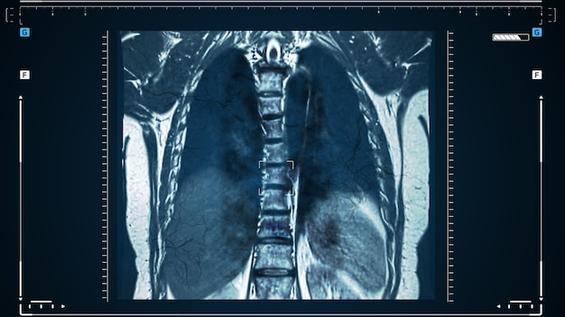 X-rays of the human lungs or physical therapy for doctors with lung problems such as viruses entering the lungs. complications after pneumonia, covid - 19, tuberculosis or smoking.