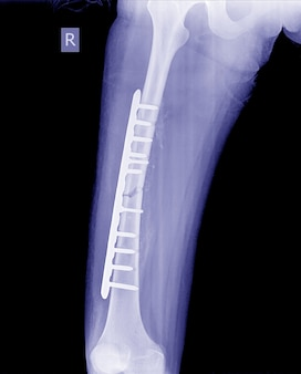 壊れた脚のx線画像、インプラントプレートとねじを備えた骨折脚のx線画像。