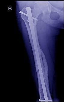 骨折した大腿骨、壊れた脚のx線画像、インプラントを伴う骨折脚(大腿骨)のx線画像