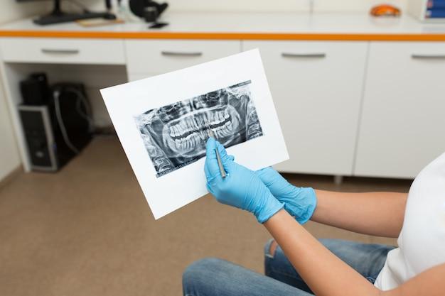 医師の歯科医がクライアントに歯のx線写真を見せます