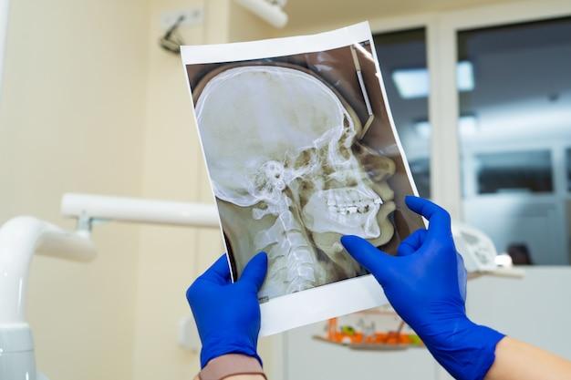 一人称視点。プロの歯科医師が患者の顎のx線写真を見る