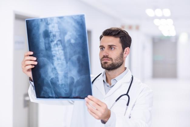 X線を調べる男性医師