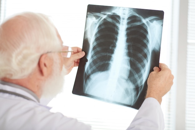 X線の確認
