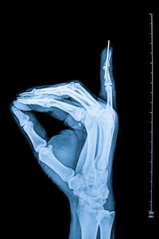 人間の指のx線透視