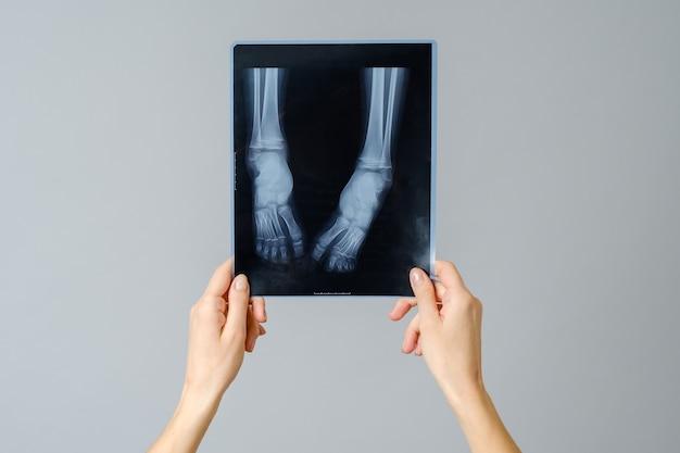 女医が生まれたばかりの赤ちゃんの足のx線画像を調べる