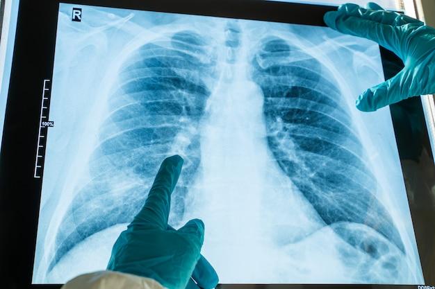 コロナウイルス肺炎の概念。人間の胸部肺のレントゲン写真x線フィルム