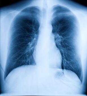 人間の胸部のx線画像