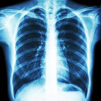 正常な人間の胸のフィルム胸部x線。正面図 。