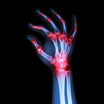 リウマチ性または痛風性関節炎。人間の手のフィルムx線。斜めから見た図。