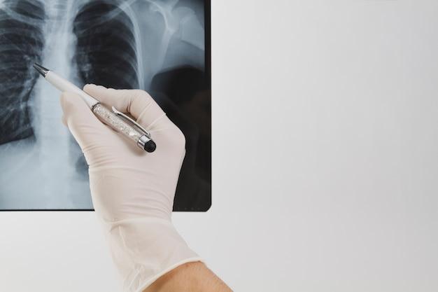 X線スキャンをチェックします