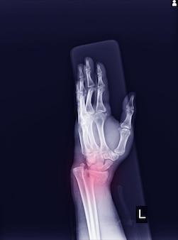 X線左手首関節変位遠位端左半径の骨折。