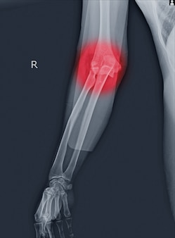 X線肘の脱臼と骨折。