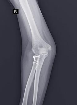 X線肘関節。レイビンガープレートによる橈骨頭の開放整復および内固定後、縫合糸アンカーによる外側尺骨側副靭帯の修復。