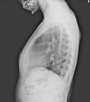 十代の患者の脊柱側湾症フィルムx線ショー脊髄曲がり。脊柱側弯症。