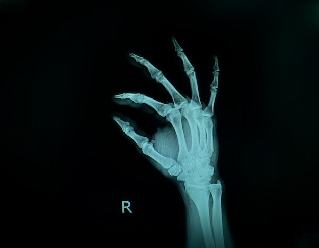 X線画像は右手を示しています。