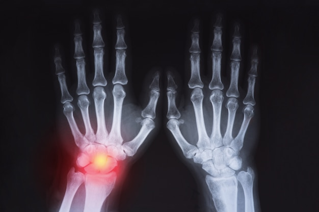 人間の手のx線が赤で強調表示されます。
