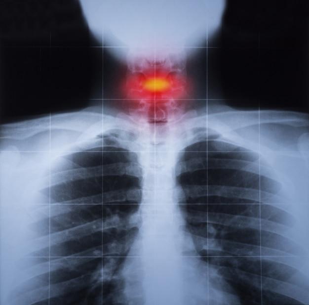 赤色で強調された胸部および頚部の外傷のx線画像