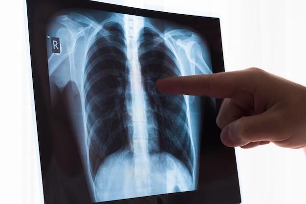 肺のレントゲン写真のコンセプト。患者の肺癌または肺炎の胸部x線フィルムを調べる放射線科医師。
