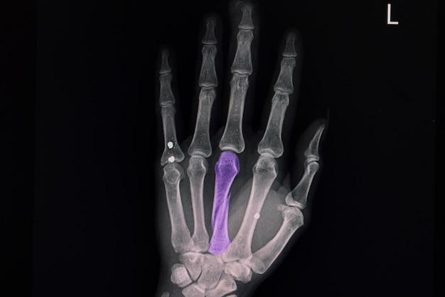 3개의 금속 인공물이 있는 세 번째 중수골 뼈의 나선형 골절 x선 필름