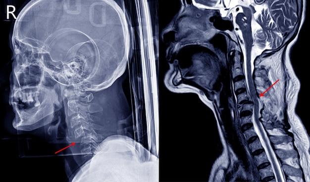Рентгеновское изображение и мрт травмы шейного отдела позвоночника, показывающие вывих кибилатерального фасеточного сустава и фасеточный перелом. пациент имеет полное повреждение спинного мозга и паралич обеих ног. медицинская концепция.