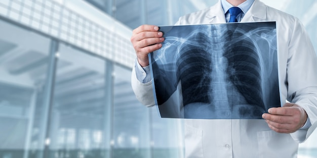 Рентгеновский снимок радиологии врач больница болезнь рентгенография