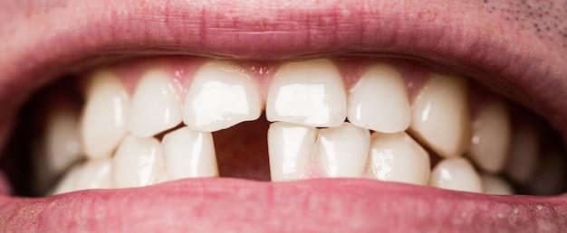 黄色い悪い歯。前歯を失った、歯痛のある男性を笑顔にします。前歯が1本もない男。歯抜け。黄色い歯。歯の健康状態が悪い、歯がない