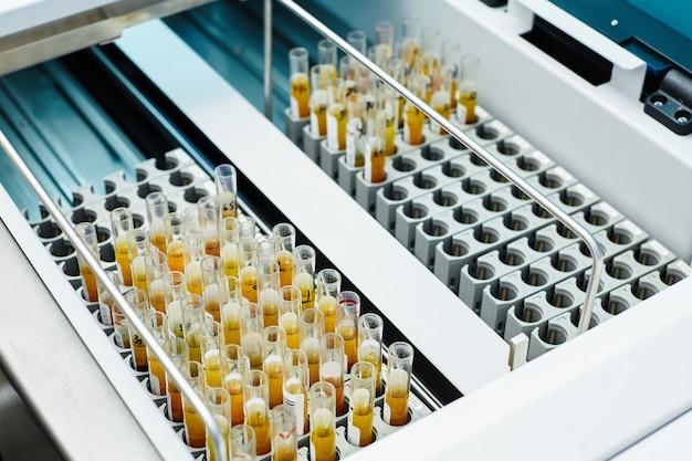 생물 학적 실험실에서 의료 상자의 테스트 튜브에 노란색 시약