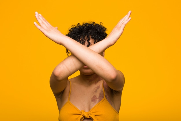Young african american woman with skin birth mark keeping two arms crossed, denial concept.